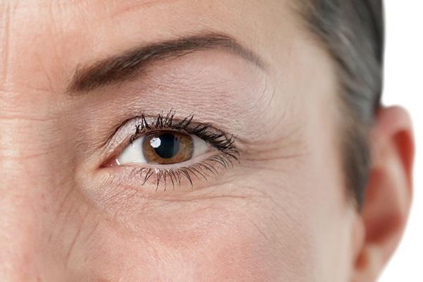 Độ tuổi nào sẽ xuất hiện nếp nhăn ở mắt