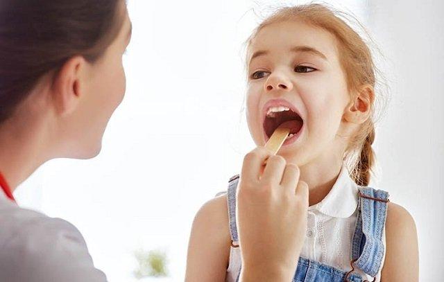 Bệnh hôi miệng có bị lây không? Tổng hợp các cách trị bệnh hôi miệng hiệu quả