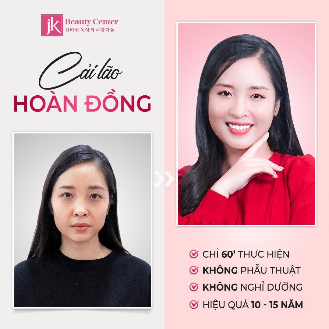 Cải lão hoàn đồng tại Phòng khám JK Việt Nam